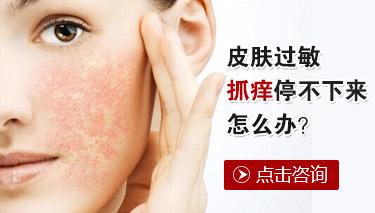 皮肤过敏患者怎么注意饮食