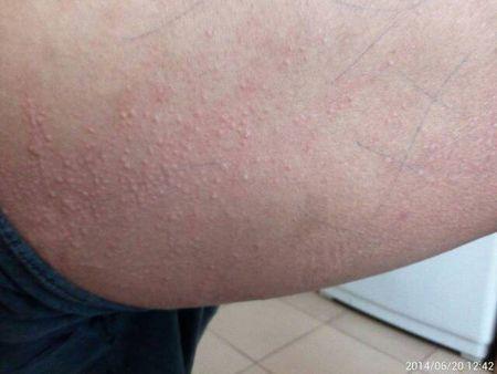荨麻疹保养方法有哪些